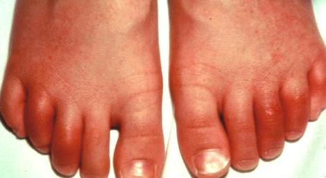 Симптомы реактивного артрита у женщин